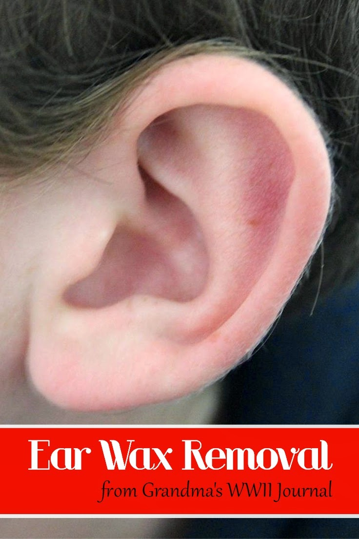 Home Remedies: Ear Wax Removal