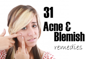 31 of the Best Acne & Blemish Remedies